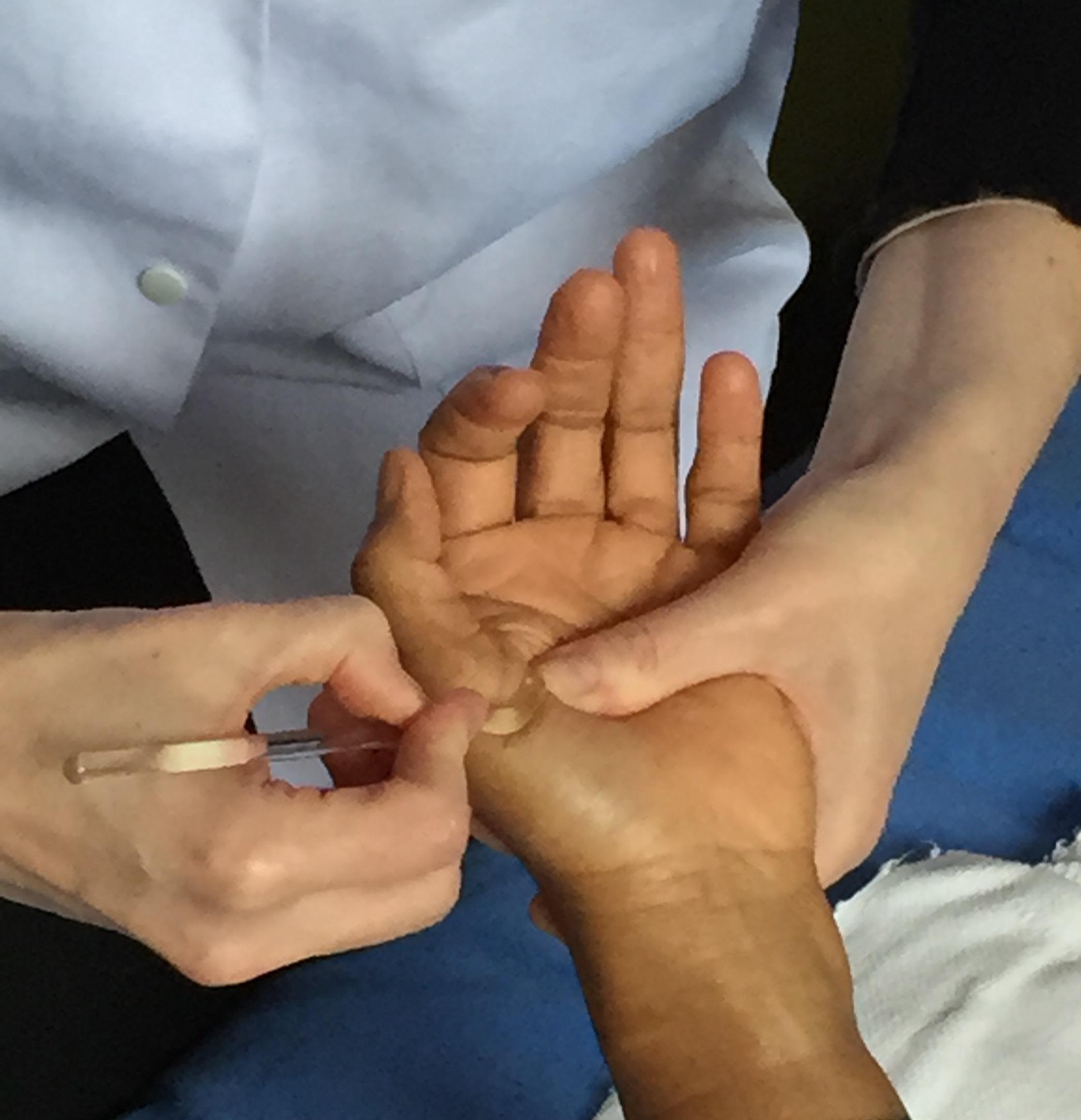 reflexotherapie palmaire avec Anne Bodin